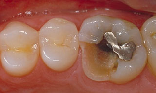 Dental Emergencies - brokenfilling