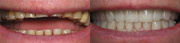 Smile Gallery - bruxism