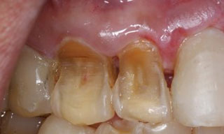 Dental Emergencies - bruxism1