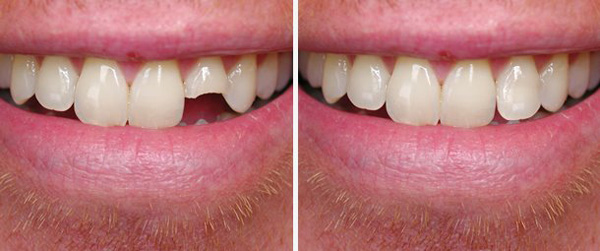 Smile Gallery - chipped-broken-teeth