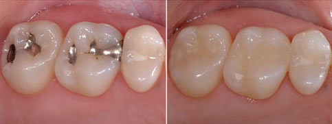 White Fillings - before and after