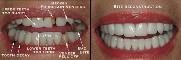 Full Mouth Rehabilitations - Before and After