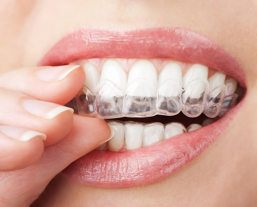 Mouthguards - guards2