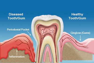 Gum Treatments - healthy vs diseased illust