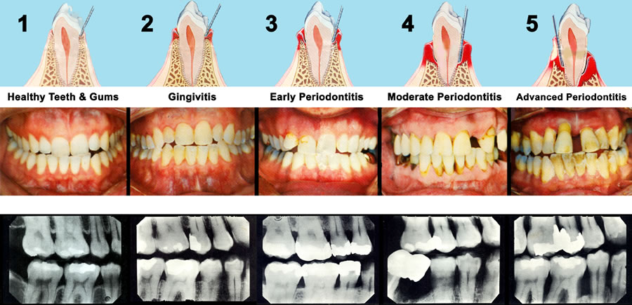 Gum Treatments - stages of gingivitis