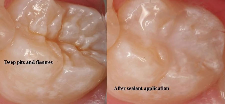 Dental Sealants - before and after