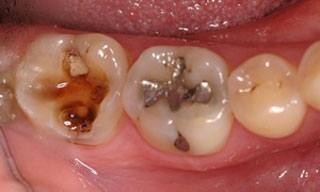 Dental Emergencies - toothdecay1