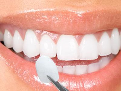 Porcelain Veneers - Image of smille